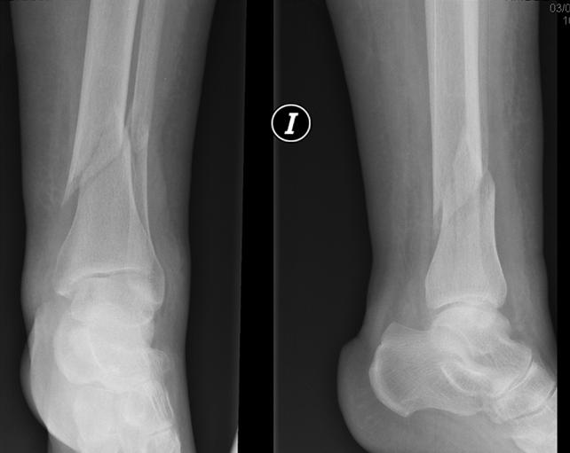 Enclavado fracturas tibia Distal https://hotopicstrauma.com